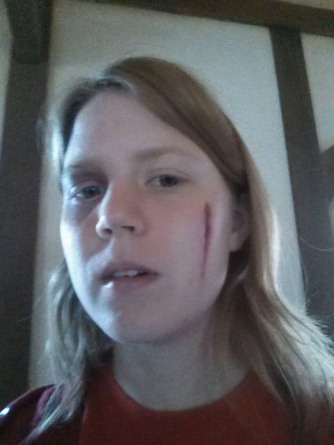 Fake scar