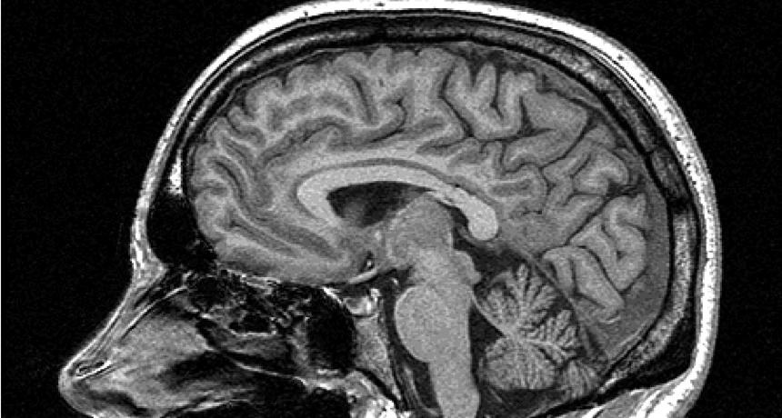 MRI_free